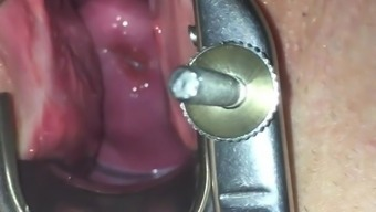 Speculum and cervix play